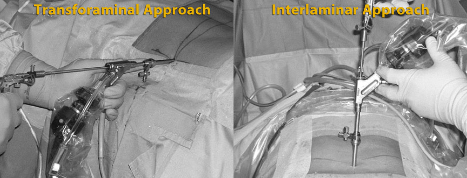 Endoscopic spinal surgery approaches